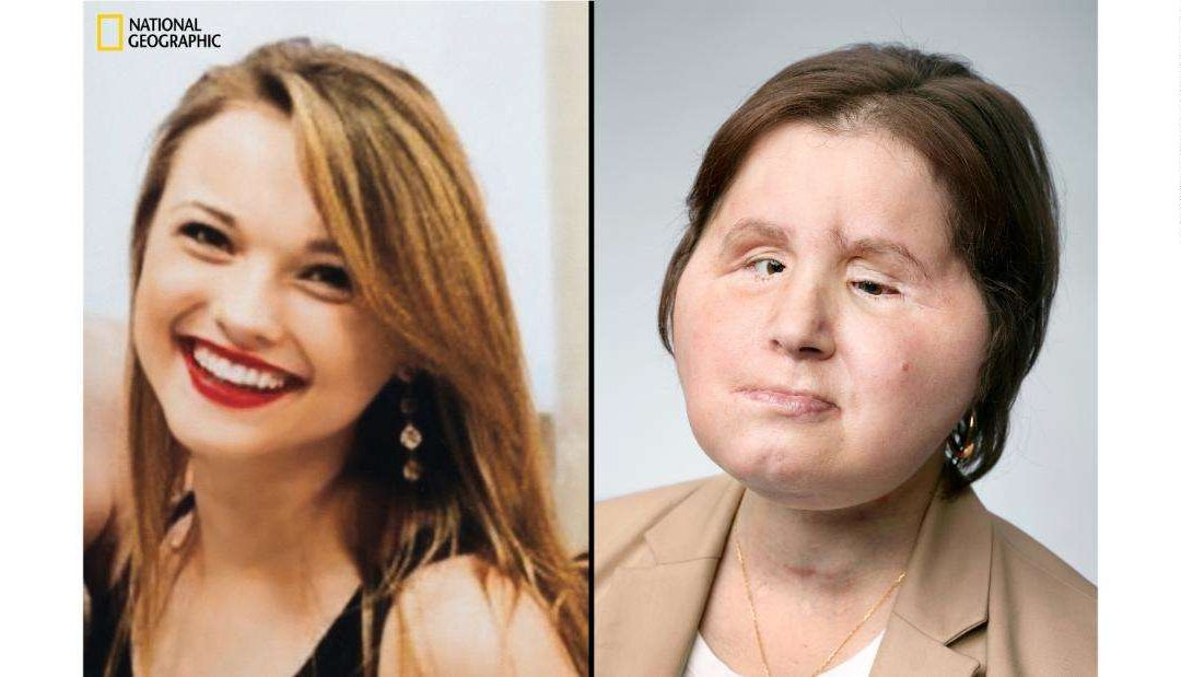 A Face Transplant Gave This Suicide Survivor A Second Chance At Life [PICS/VIDEO]